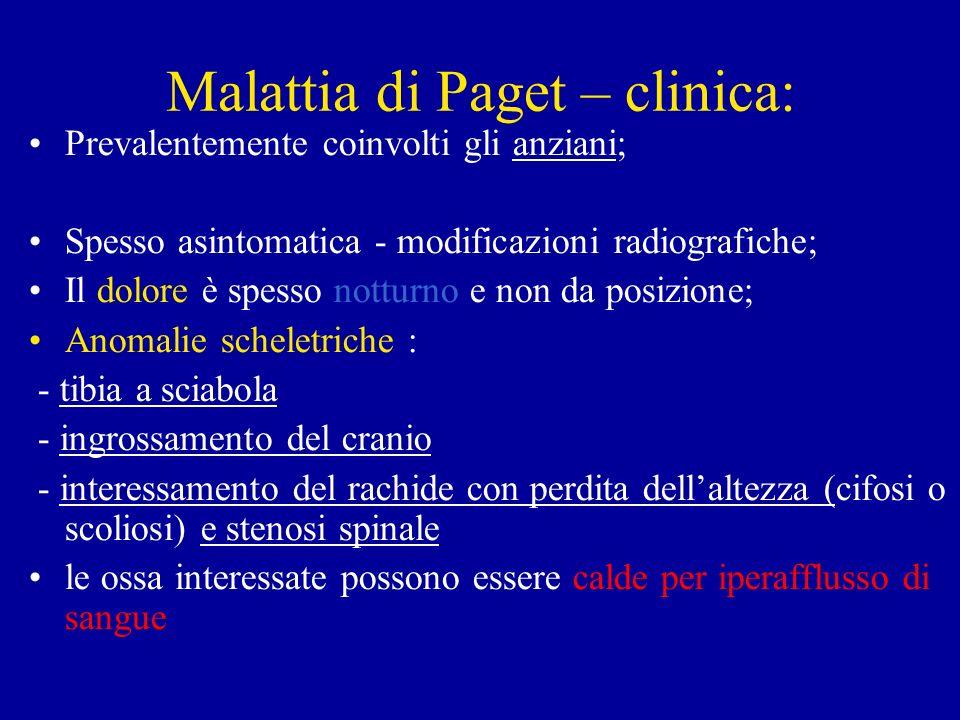 Malattia di Paget – clinica: