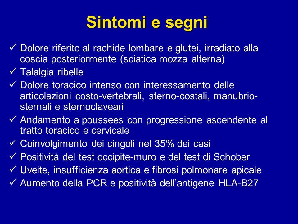 Sintomi e segni Dolore riferito al rachide lombare e glutei, irradiato alla coscia posteriormente (sciatica mozza alterna)