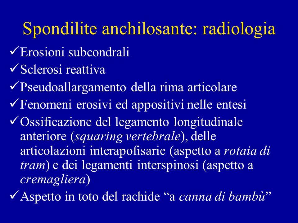 Spondilite anchilosante: radiologia