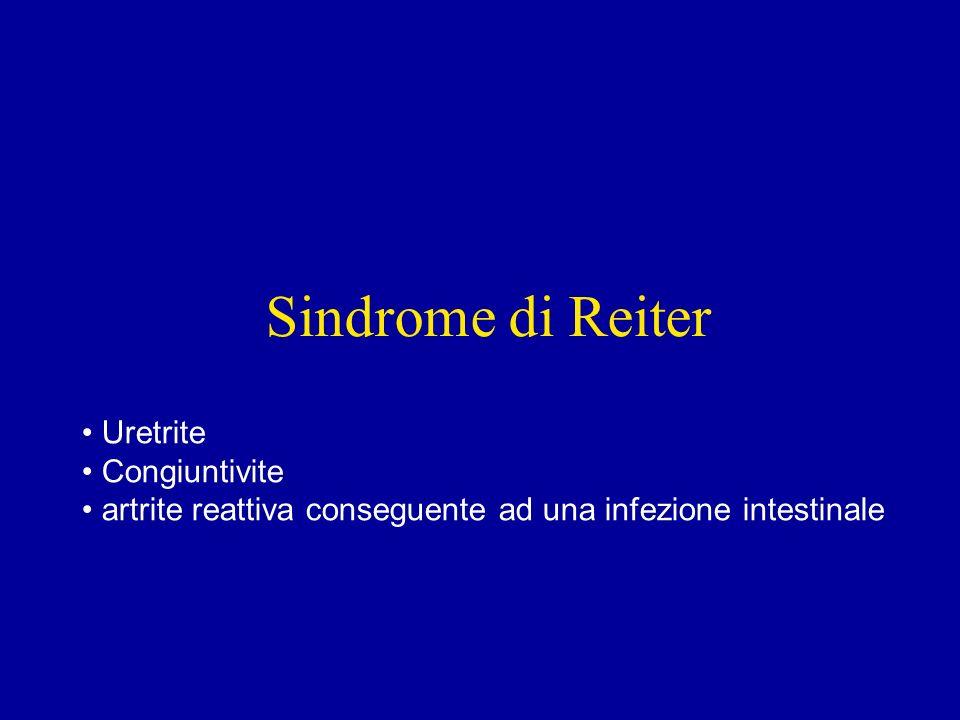Sindrome di Reiter Uretrite Congiuntivite