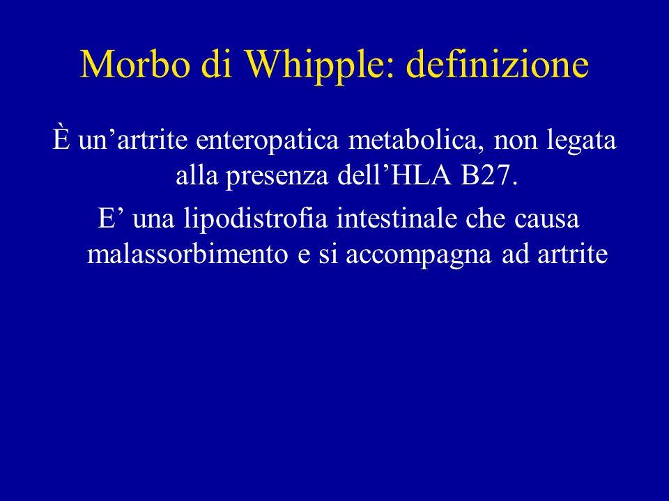 Morbo di Whipple: definizione