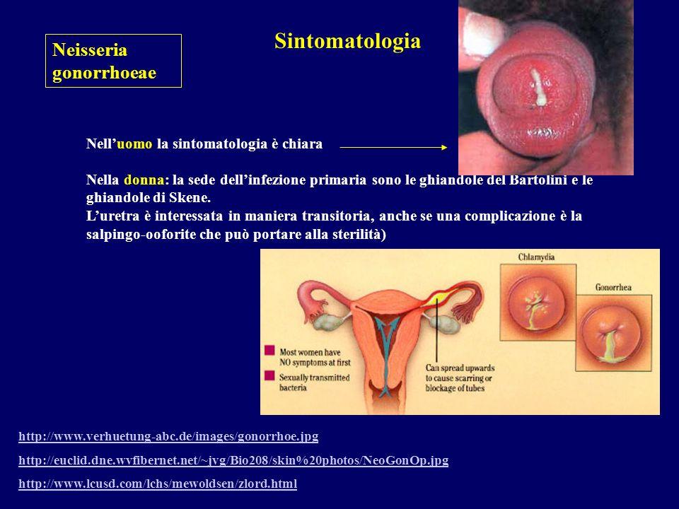 Sintomatologia Neisseria gonorrhoeae
