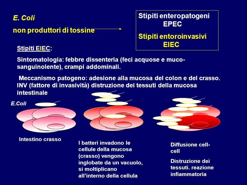 Stipiti enteropatogeni EPEC Stipiti entoroinvasivi EIEC E. Coli