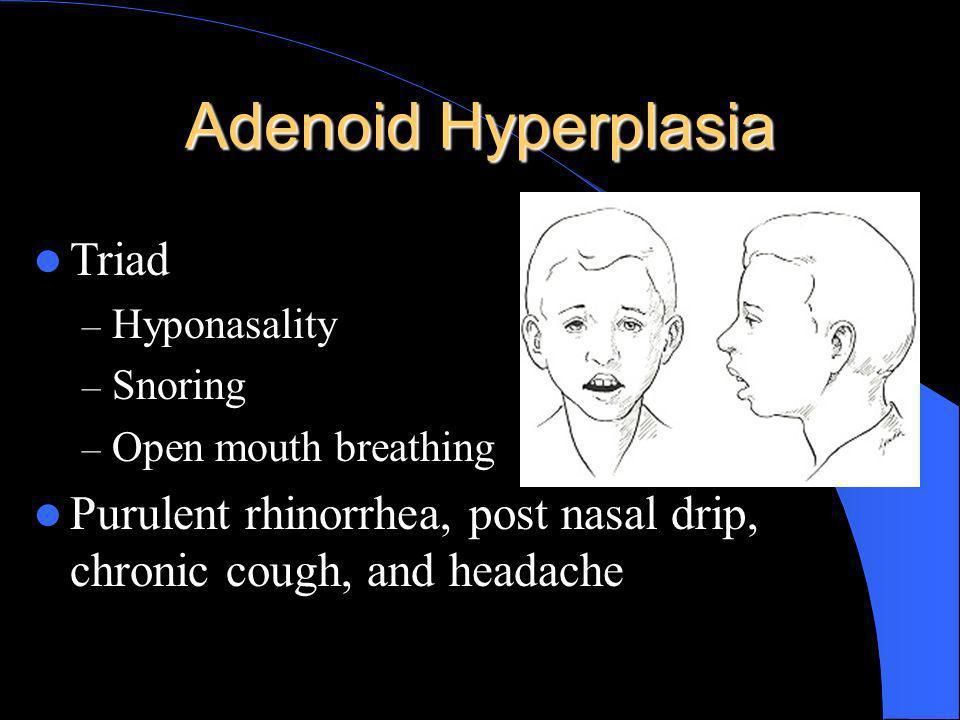 Adenoid Hyperplasia Triad