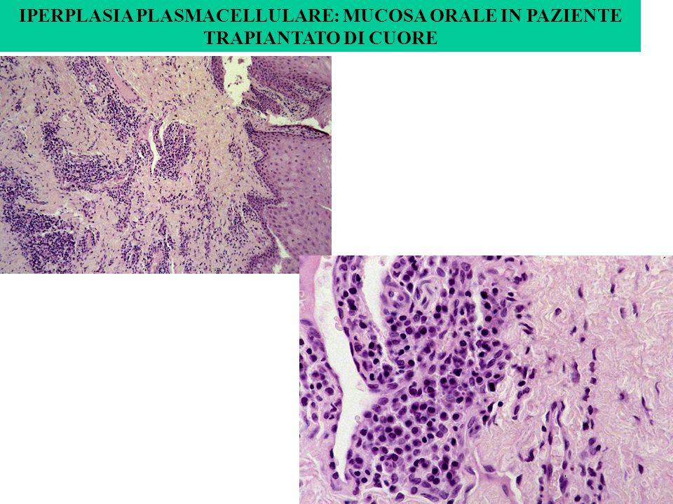 IPERPLASIA PLASMACELLULARE: MUCOSA ORALE IN PAZIENTE TRAPIANTATO DI CUORE