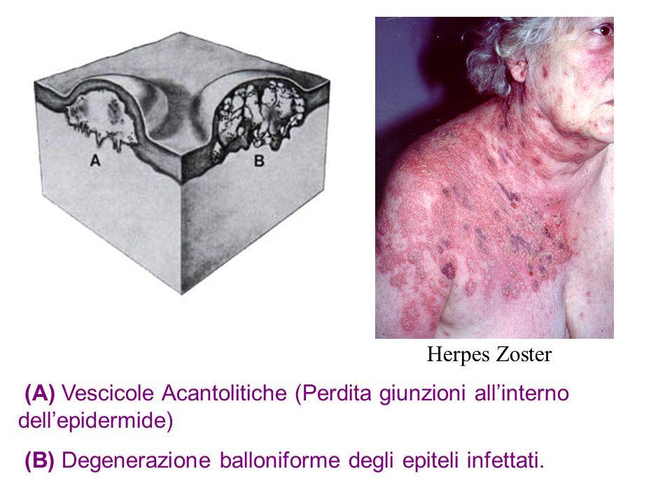 Herpes Zoster (A) Vescicole Acantolitiche (Perdita giunzioni all'interno dell'epidermide) (B) Degenerazione balloniforme degli epiteli infettati.