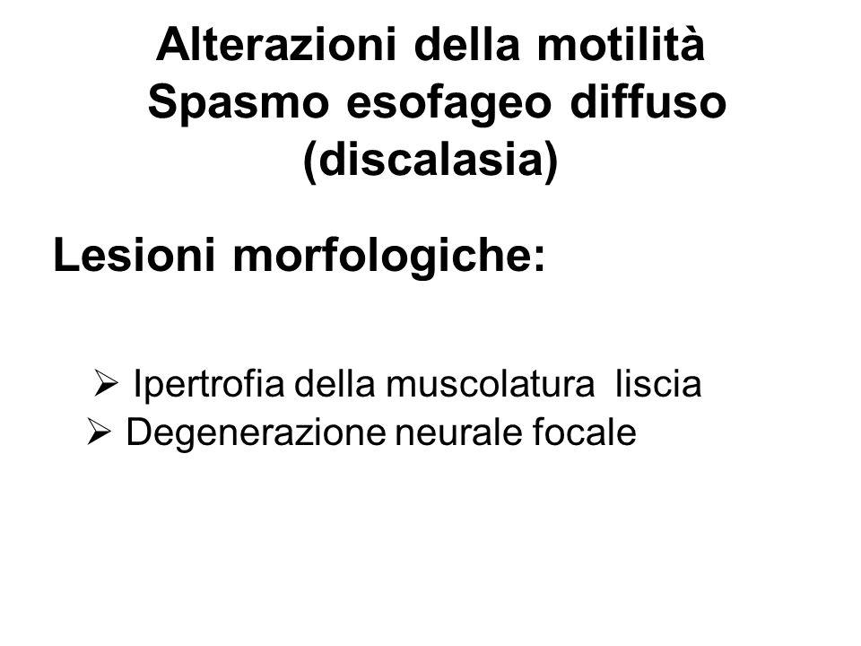 Alterazioni della motilità Spasmo esofageo diffuso (discalasia)