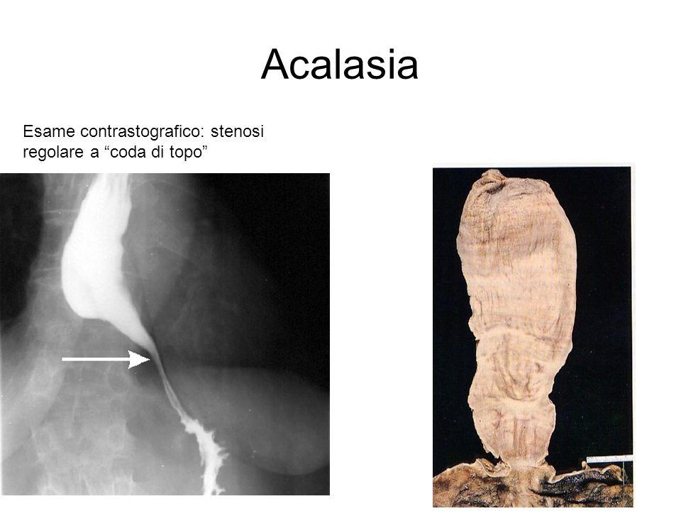Acalasia Esame contrastografico: stenosi regolare a coda di topo