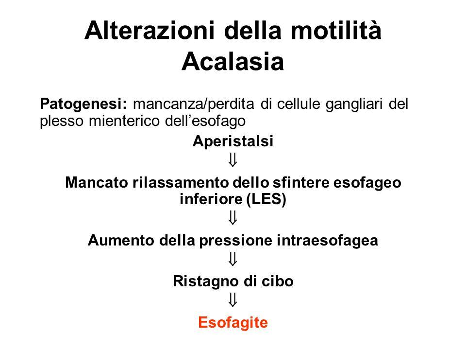 Alterazioni della motilità Acalasia
