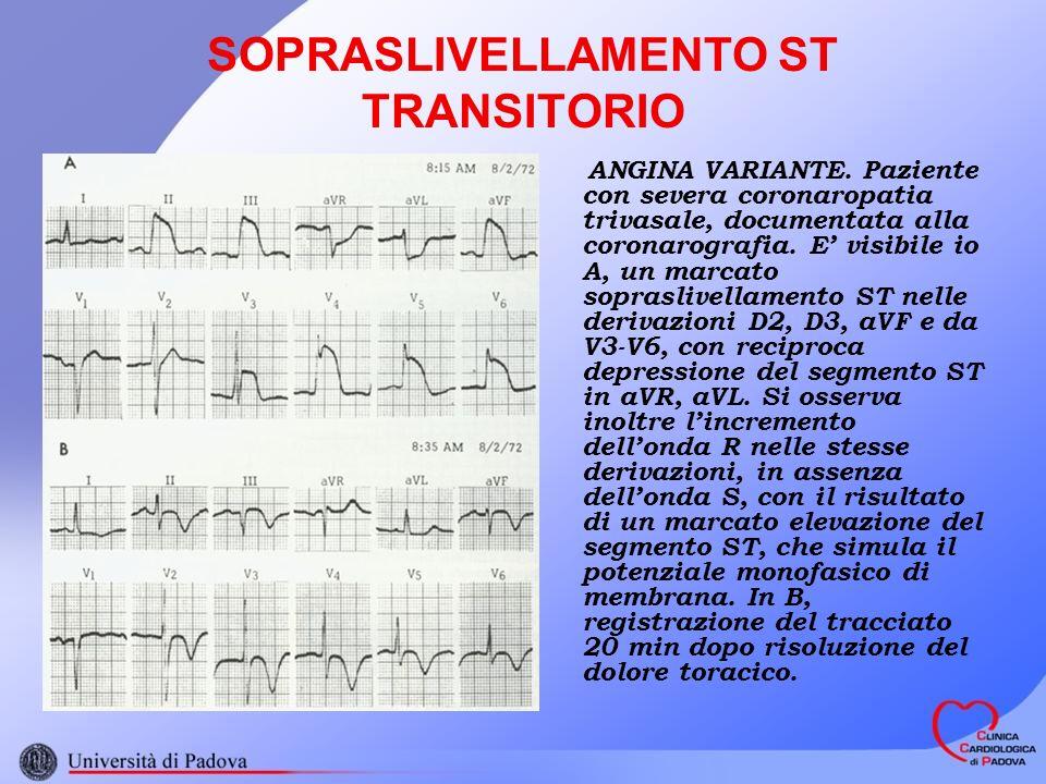 SOPRASLIVELLAMENTO ST TRANSITORIO