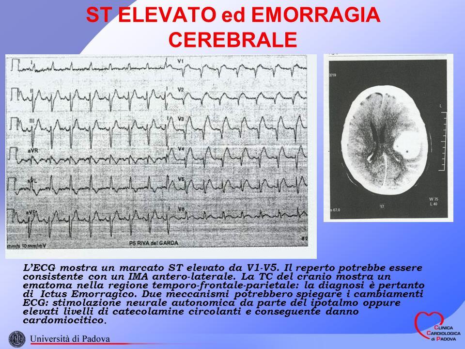 ST ELEVATO ed EMORRAGIA CEREBRALE