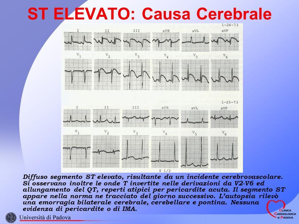 ST ELEVATO: Causa Cerebrale