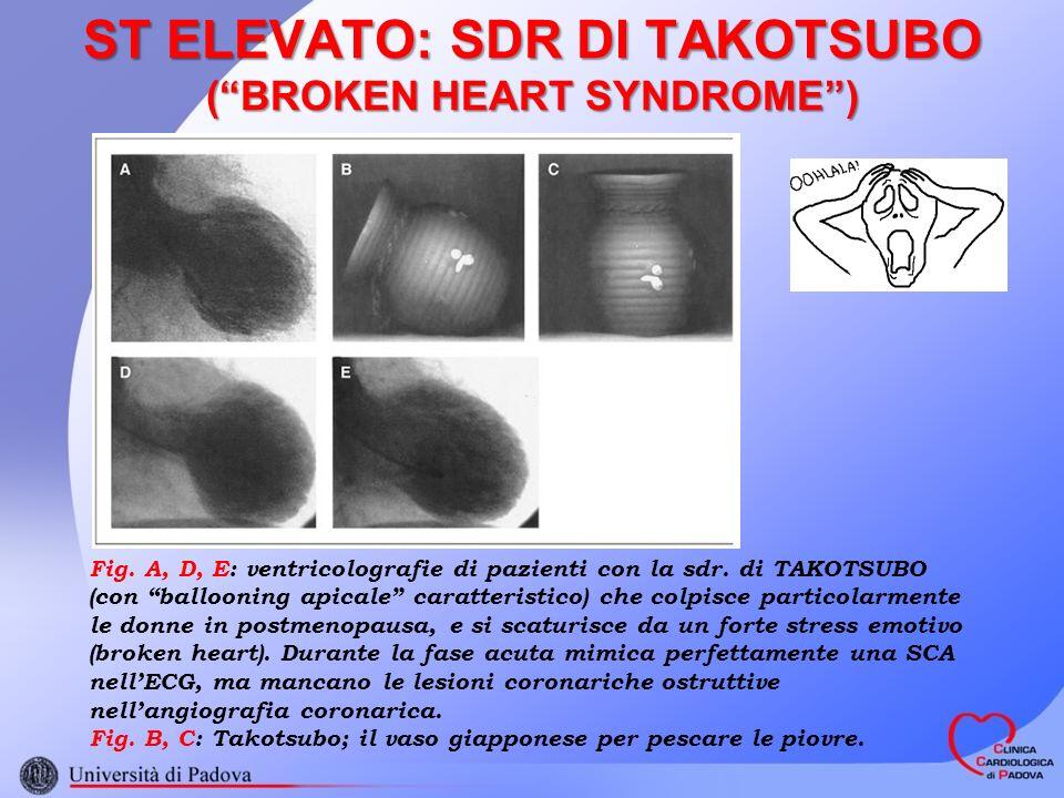 ST ELEVATO: SDR DI TAKOTSUBO ( BROKEN HEART SYNDROME )