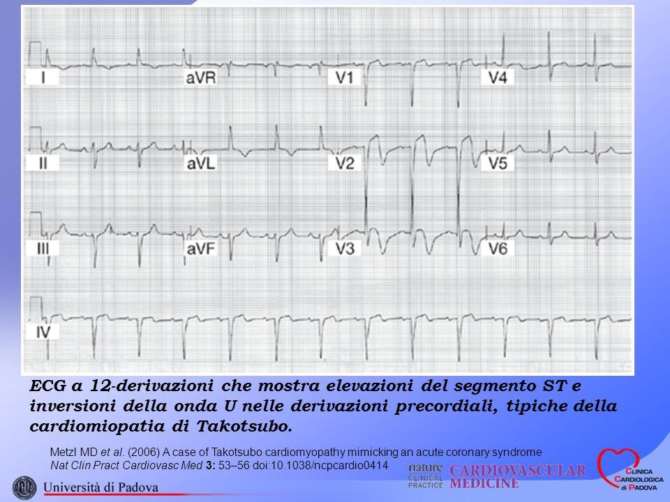 ECG a 12-derivazioni che mostra elevazioni del segmento ST e inversioni della onda U nelle derivazioni precordiali, tipiche della cardiomiopatia di Takotsubo.