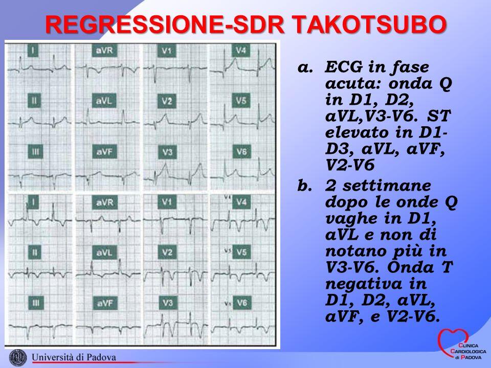 REGRESSIONE-SDR TAKOTSUBO