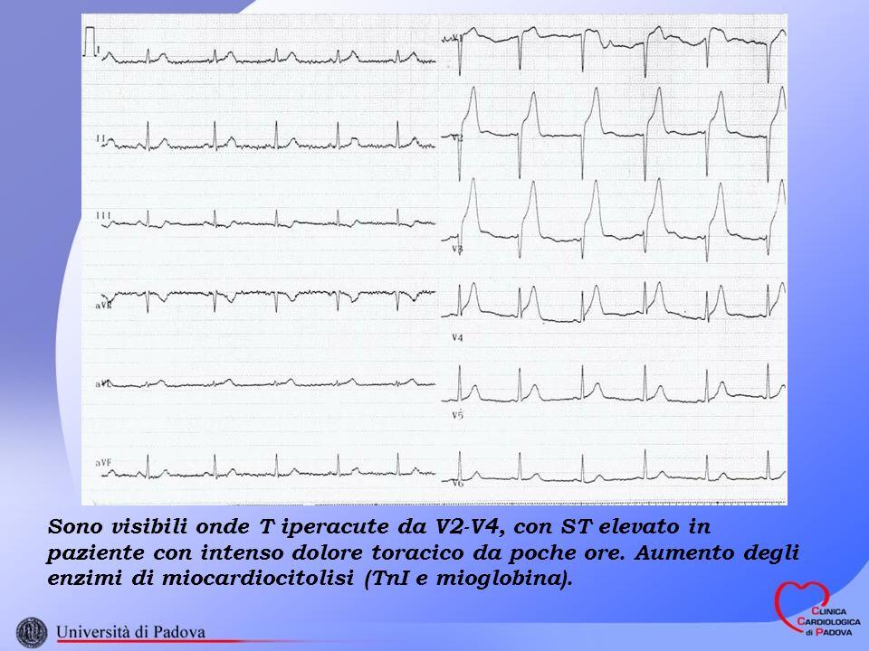 Sono visibili onde T iperacute da V2-V4, con ST elevato in paziente con intenso dolore toracico da poche ore.