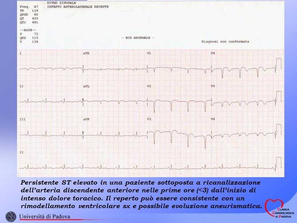 Persistente ST elevato in una paziente sottoposta a ricanalizzazione dell'arteria discendente anteriore nelle prime ore (<3) dall'inizio di intenso dolore toracico.