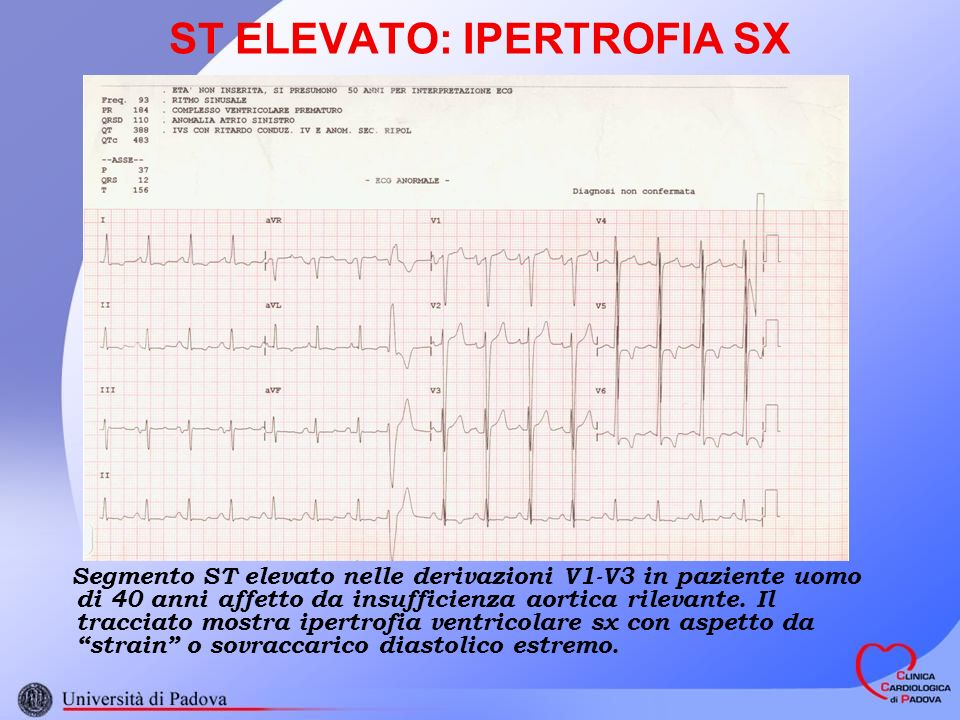 ST ELEVATO: IPERTROFIA SX
