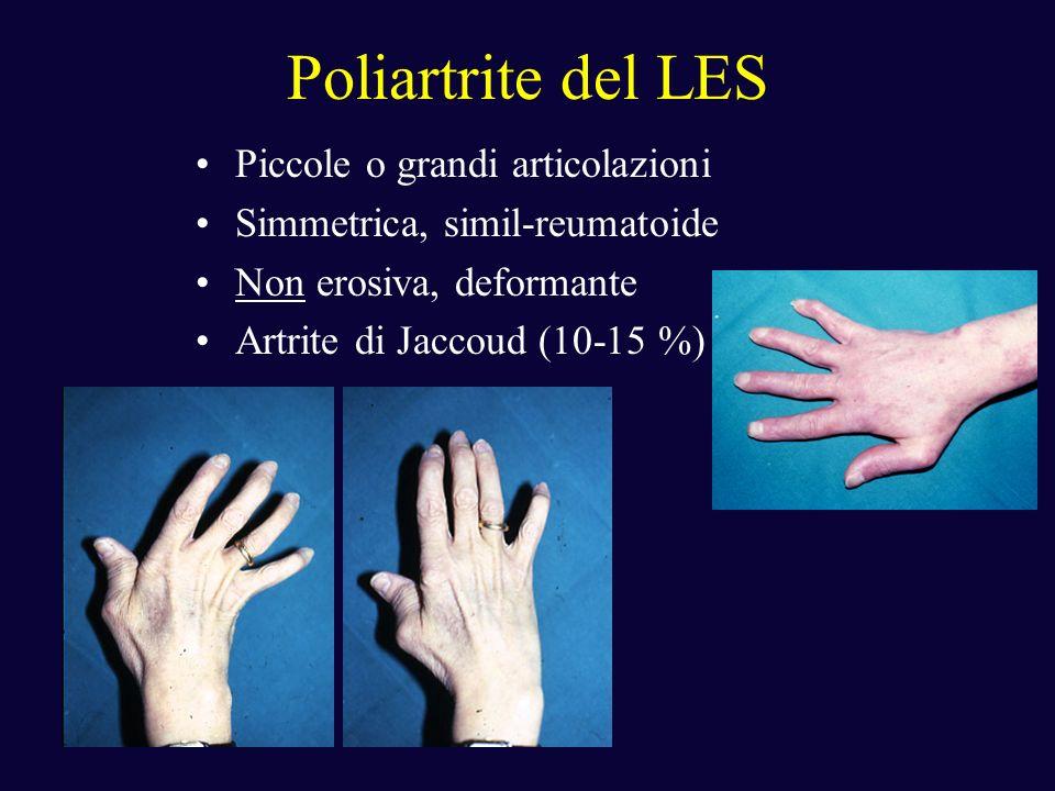 Poliartrite del LES Piccole o grandi articolazioni