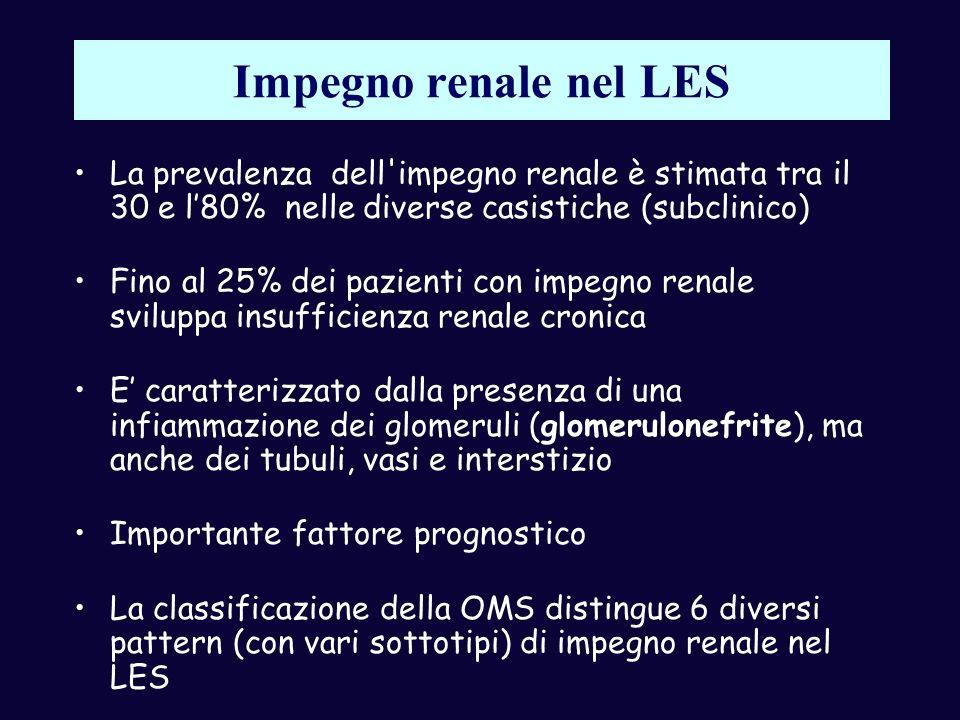 Impegno renale nel LES La prevalenza dell impegno renale è stimata tra il 30 e l'80% nelle diverse casistiche (subclinico)