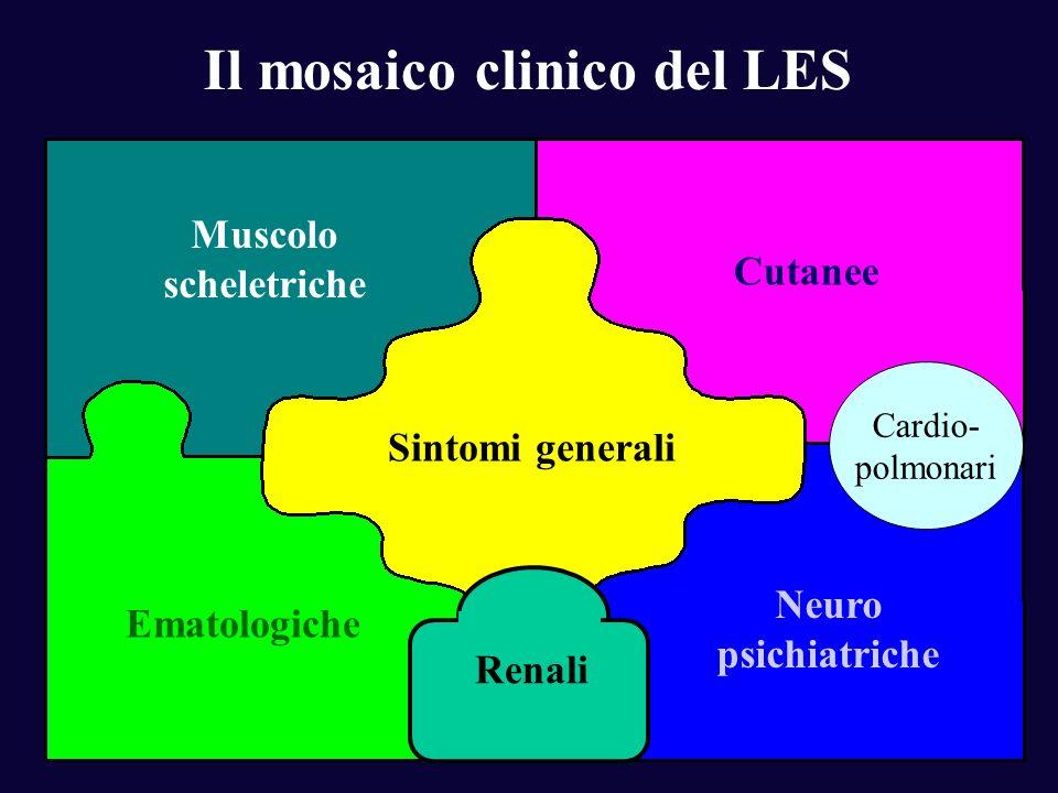 Il mosaico clinico del LES