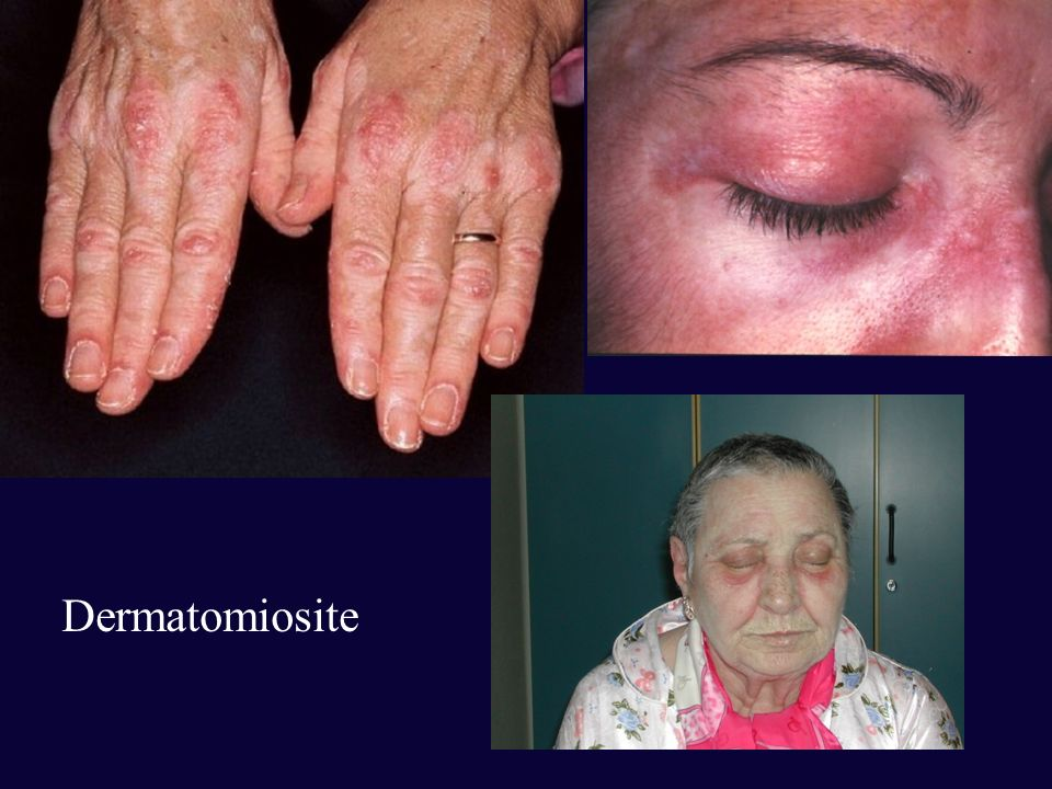 Dermatomiosite