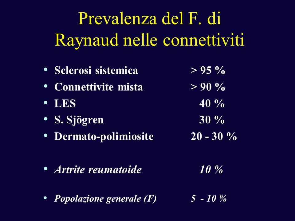 Prevalenza del F. di Raynaud nelle connettiviti