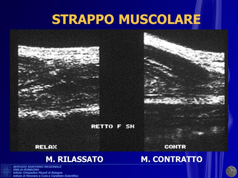 STRAPPO MUSCOLARE M. RILASSATO M. CONTRATTO
