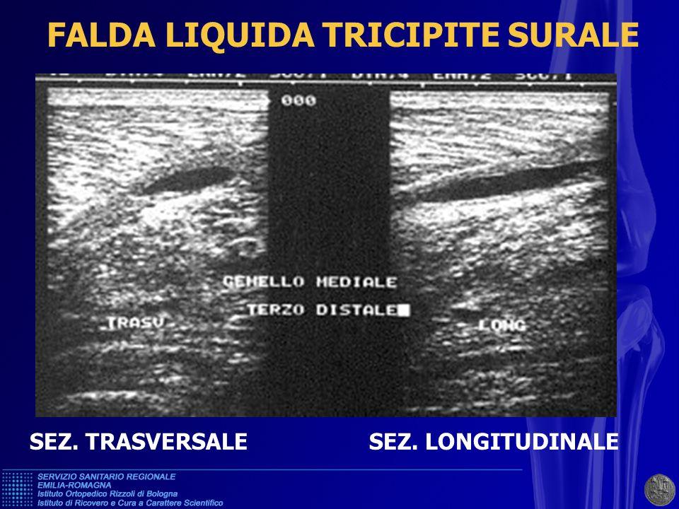 FALDA LIQUIDA TRICIPITE SURALE
