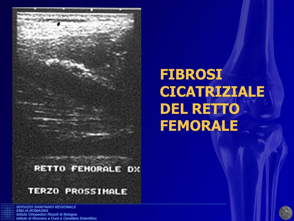 FIBROSI CICATRIZIALE DEL RETTO FEMORALE