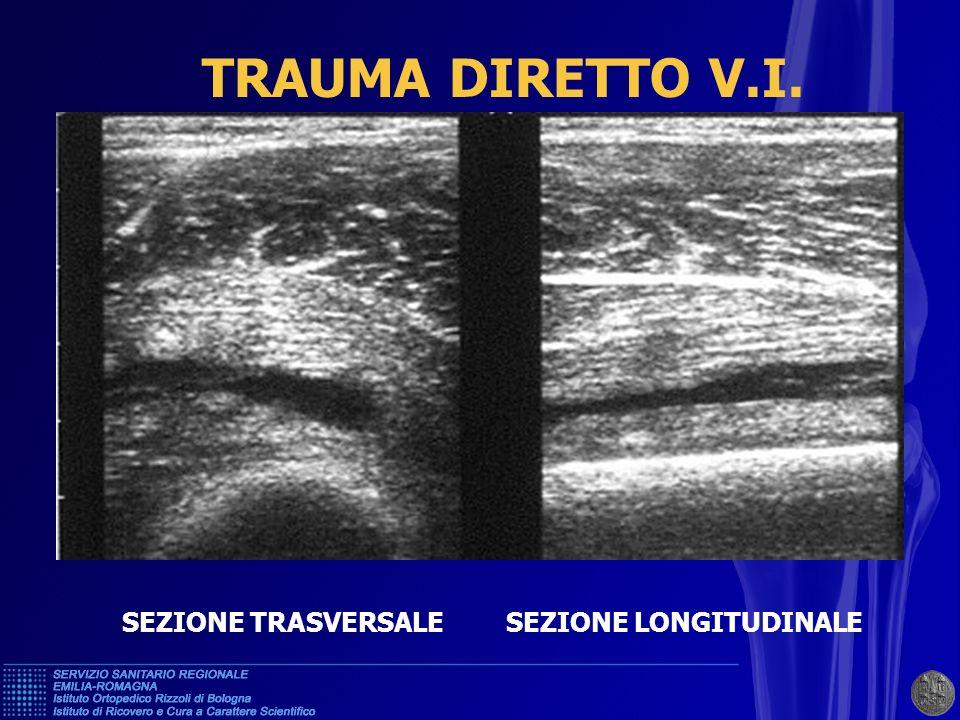 TRAUMA DIRETTO V.I. SEZIONE TRASVERSALE SEZIONE LONGITUDINALE