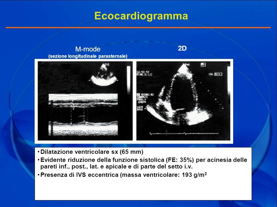 M-mode (sezione longitudinale parasternale)
