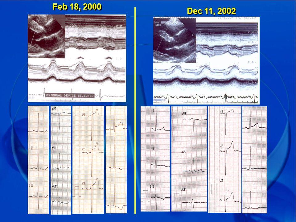Feb 18, 2000 Dec 11, 2002.