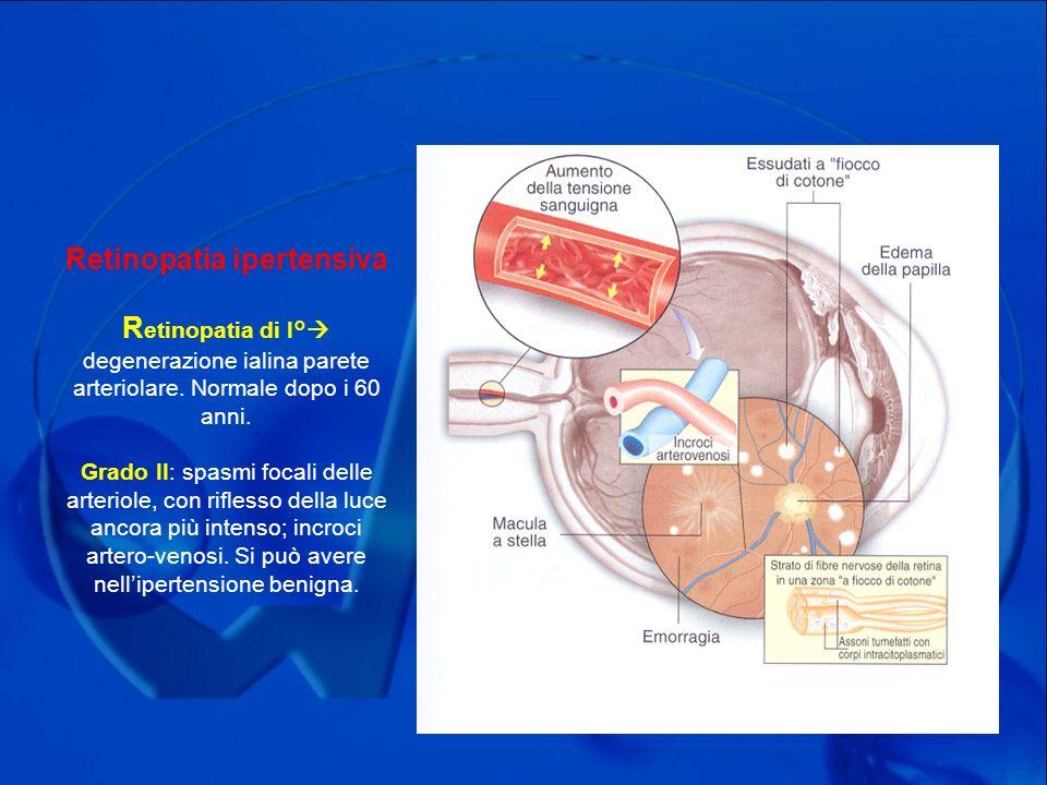 Retinopatia ipertensiva Retinopatia di I° degenerazione ialina parete arteriolare.