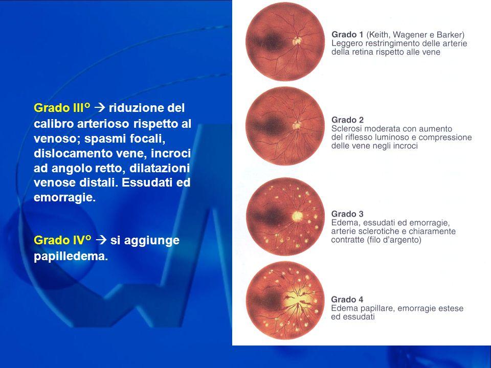 Grado III°  riduzione del calibro arterioso rispetto al venoso; spasmi focali, dislocamento vene, incroci ad angolo retto, dilatazioni venose distali. Essudati ed emorragie.
