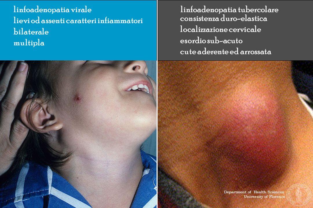 linfoadenopatia virale lievi od assenti caratteri infiammatori