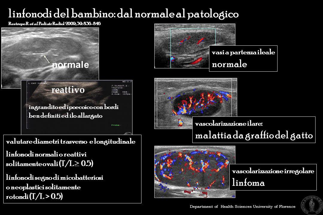 linfonodi del bambino: dal normale al patologico