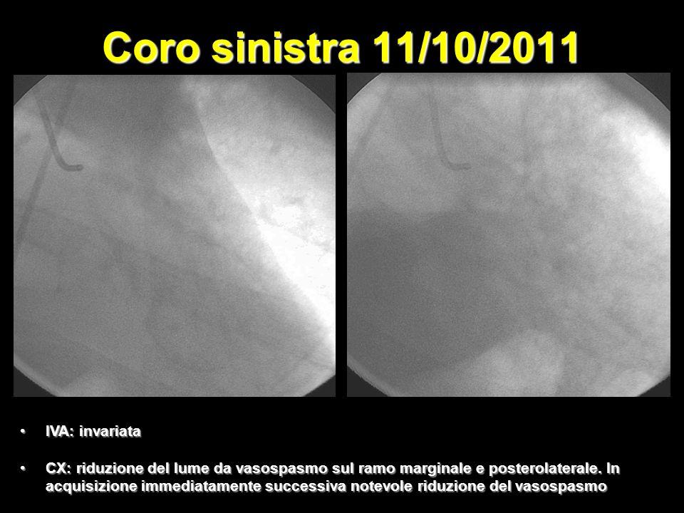 Coro sinistra 11/10/2011 IVA: invariata