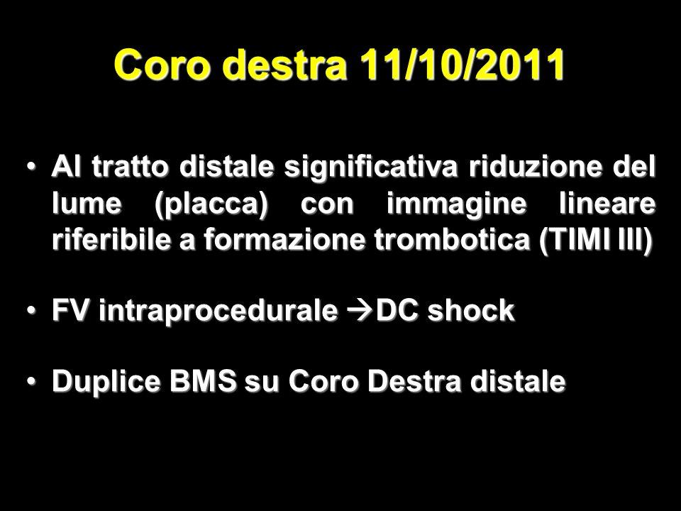 Coro destra 11/10/2011 Al tratto distale significativa riduzione del lume (placca) con immagine lineare riferibile a formazione trombotica (TIMI III)