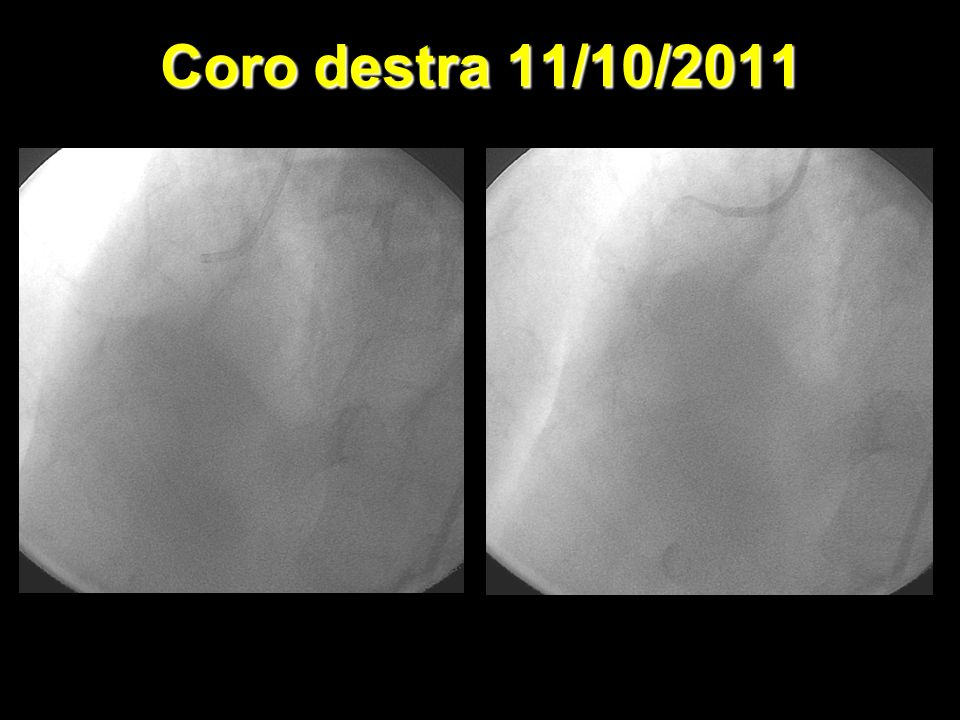 Coro destra 11/10/2011