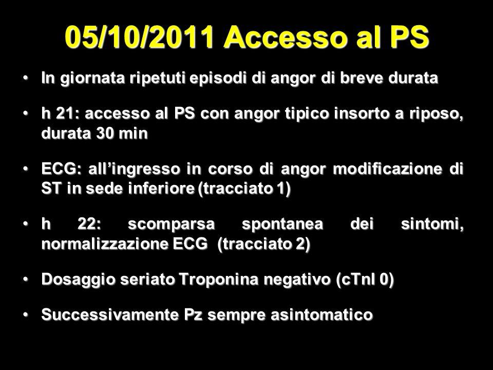 05/10/2011 Accesso al PS In giornata ripetuti episodi di angor di breve durata. h 21: accesso al PS con angor tipico insorto a riposo, durata 30 min.