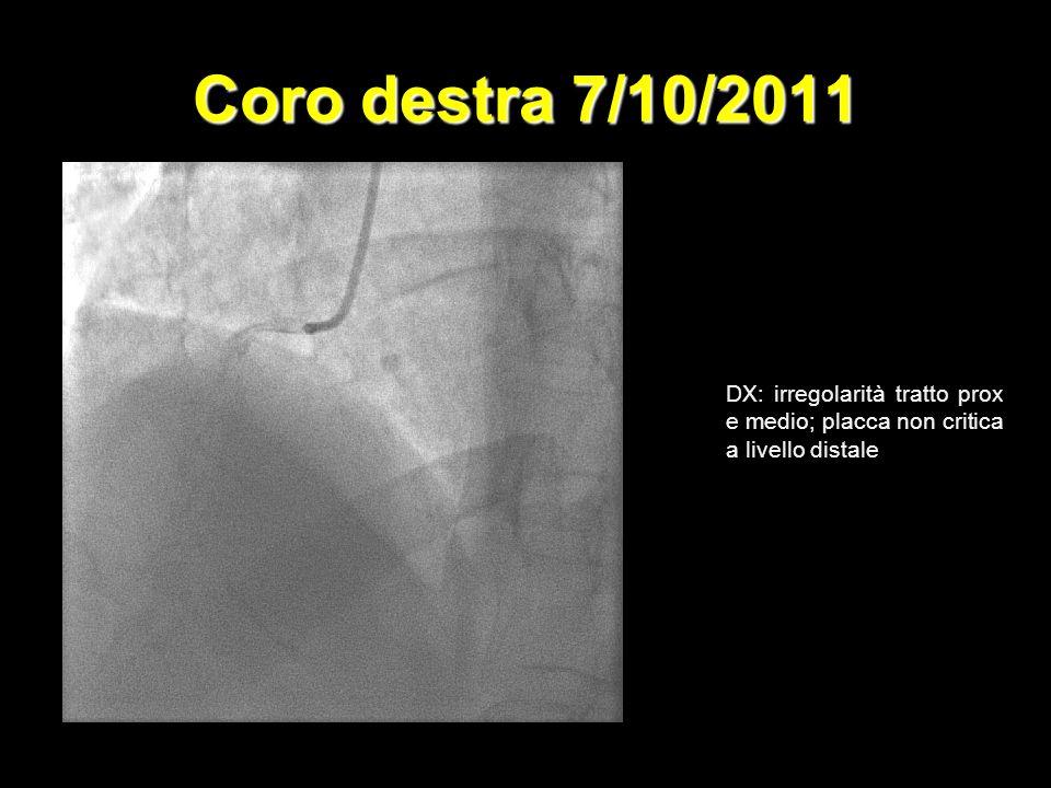 Coro destra 7/10/2011 DX: irregolarità tratto prox e medio; placca non critica a livello distale