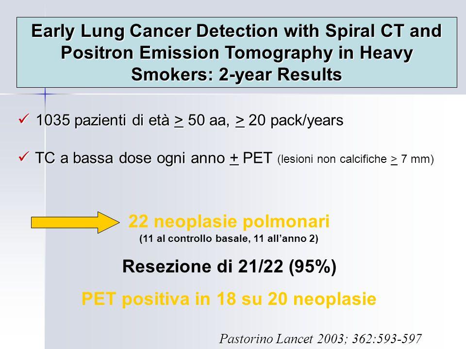 22 neoplasie polmonari (11 al controllo basale, 11 all'anno 2)
