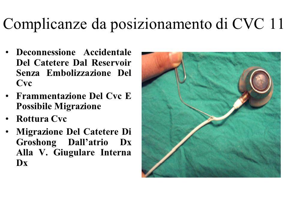 Complicanze da posizionamento di CVC 11