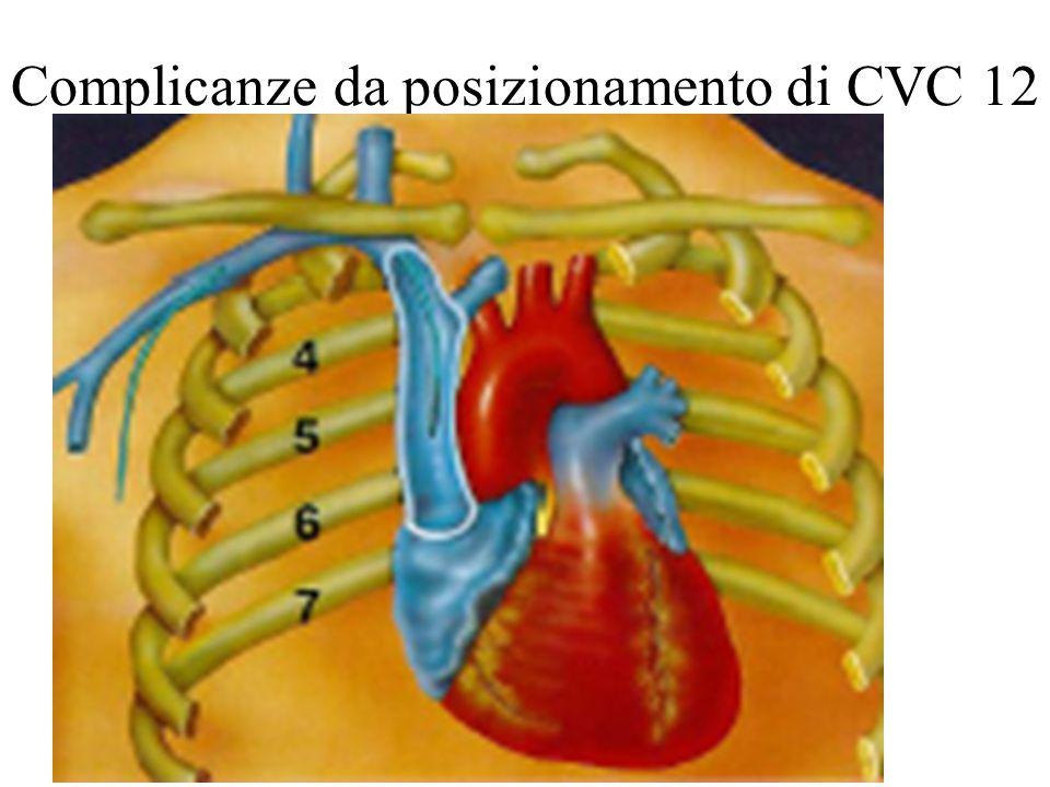 Complicanze da posizionamento di CVC 12