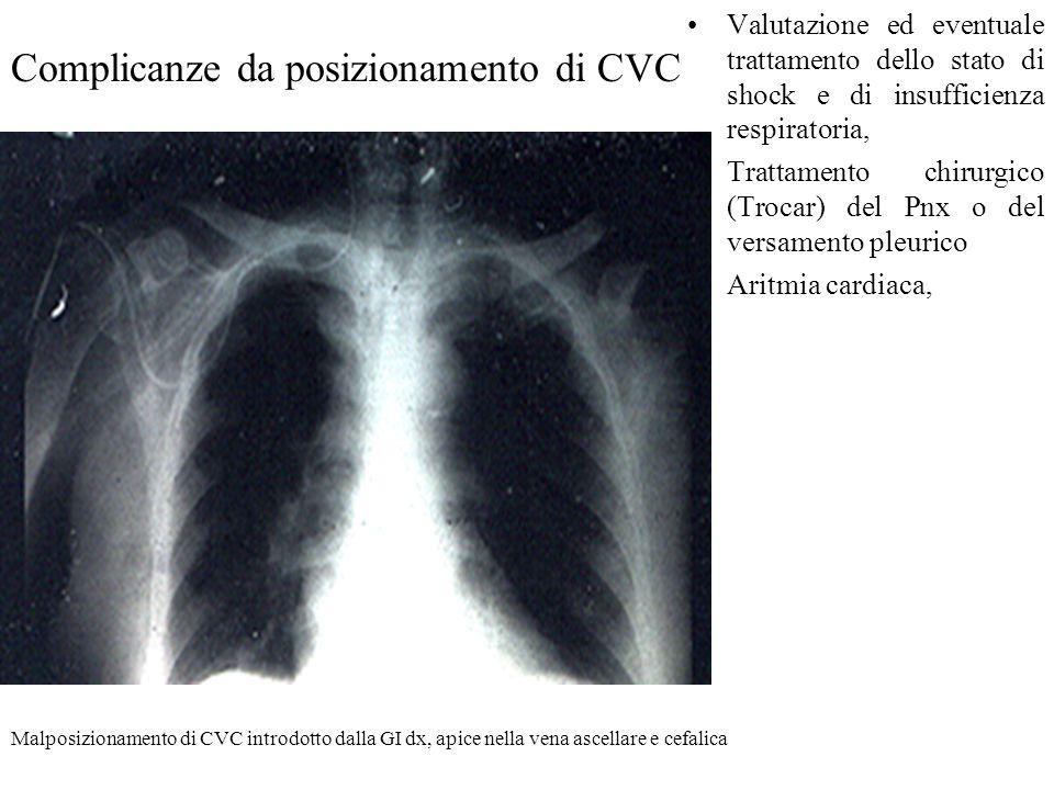 Complicanze da posizionamento di CVC