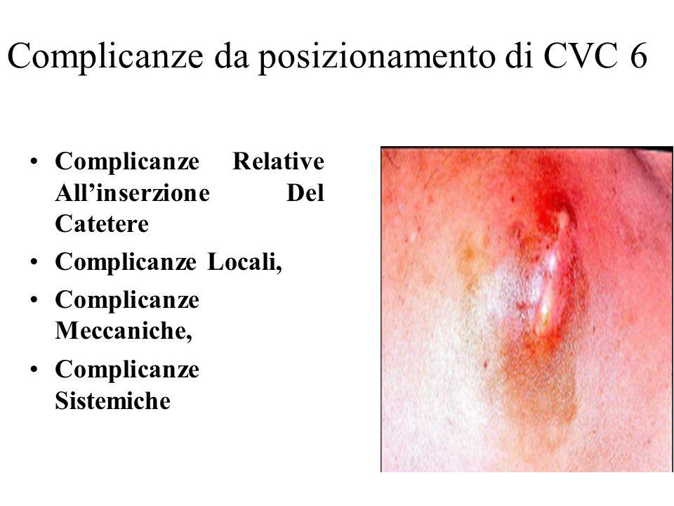 Complicanze da posizionamento di CVC 6
