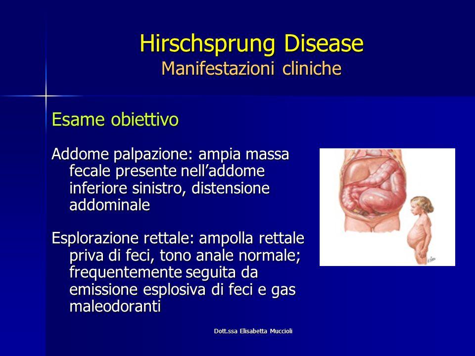 Hirschsprung Disease Manifestazioni cliniche