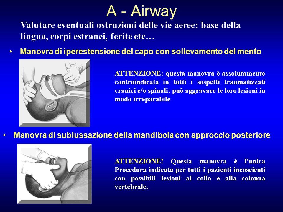 A - Airway Valutare eventuali ostruzioni delle vie aeree: base della lingua, corpi estranei, ferite etc…