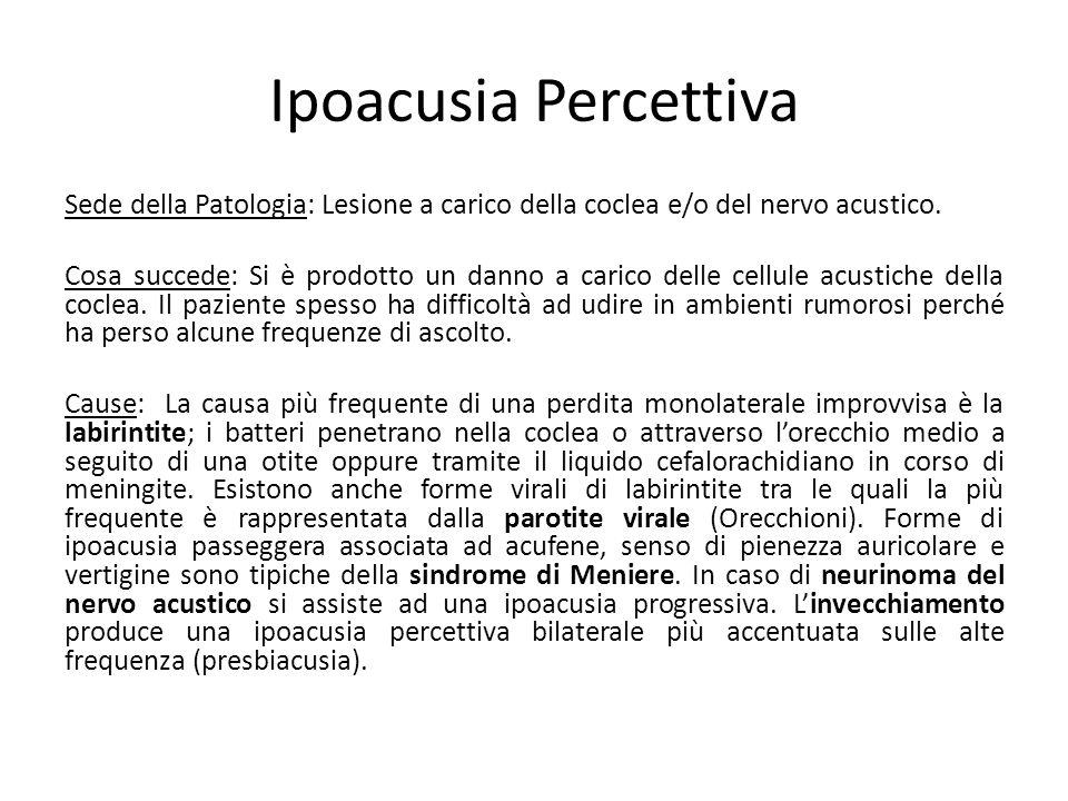 Ipoacusia Percettiva